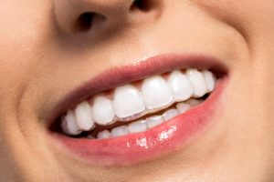 Invisalign clear aligners from Mankato dentist, James Kalina DDS, are today's easy, quick and discreet way to straighten crooked smiles. Read about them here.