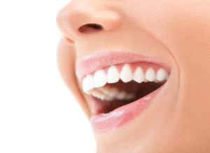 young woman smiling straight teeth