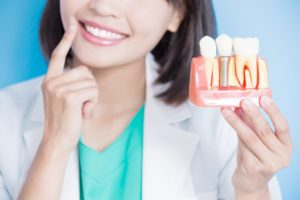 a woman pointing to her smile while holding a mold of teeth and a dental implant